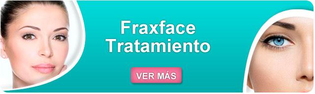 fraxface resultados, fraxface estrias, como eliminar las arrugas dela cara, como prevenir las arrugas en la cara, como evitar las arrugas dela cara, tratamientos para las arrugas,