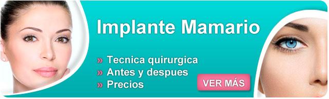 implante mamario, protesis.mamarias, implantes mentor, implante de mamas, implantes de senos, precios de implantes mamarios, implantes mamarios, implante mamarios, inplantes mamarios,