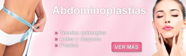 abdominoplastia, abdominoplastia fotos antes e depois, abdominoplastia masculina, abdomenplastia, cirugia de abdomen, abdominiplastia, abdominoplastia gratuita,